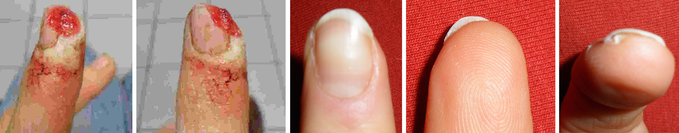 Finger_Brigitte_Krause